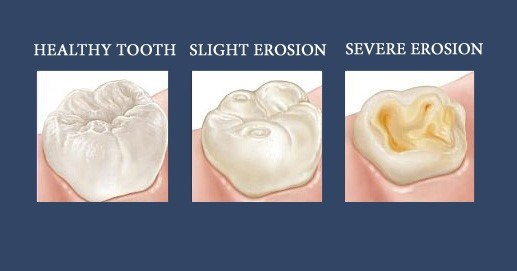 cid erosion of teeth
